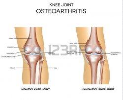 40037036-変形性関節症、白で隔離される通常ひざ関節の解剖学
